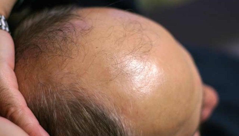 España, líder mundial de trasplantes de pelo