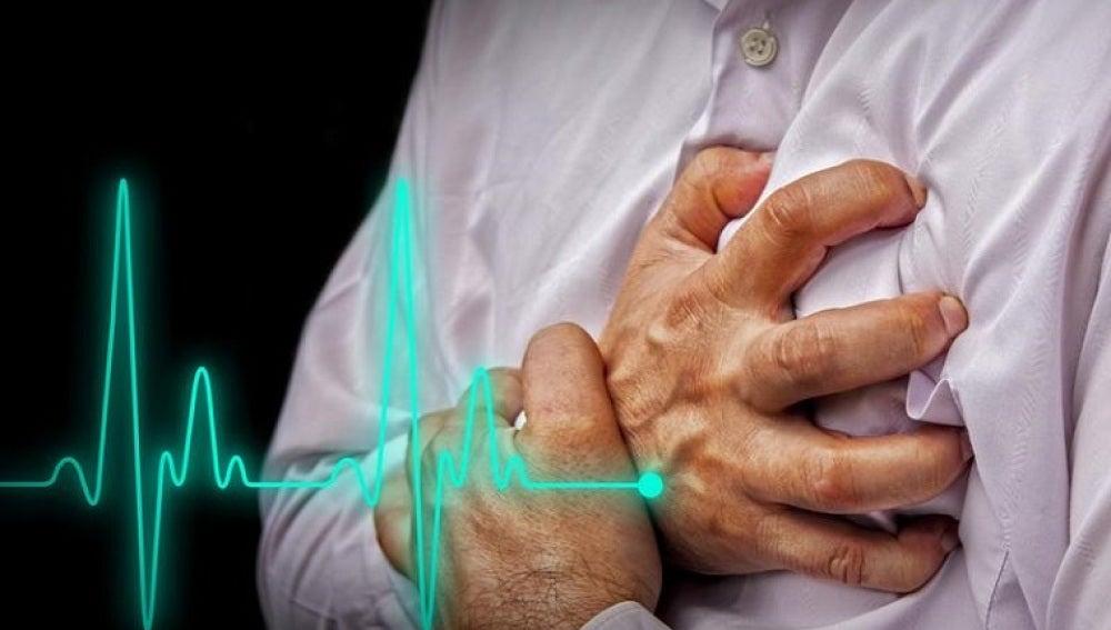 Infarto de miocardio