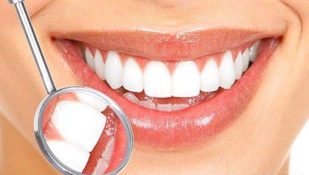 El blanqueamiento, tercer tratamiento estético dental más demandado