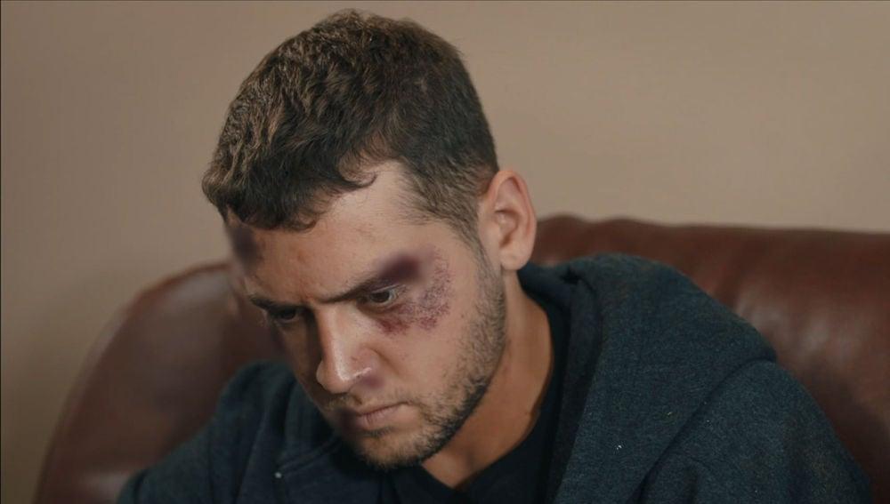 Murat, golpeado