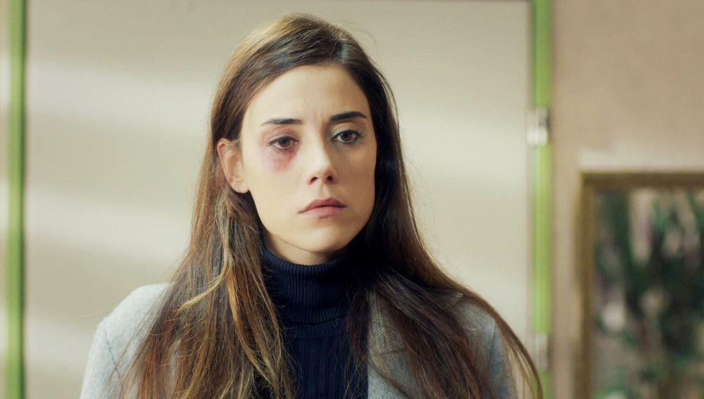 Zeynep se autolesiona para fingir que es víctima de violencia de género